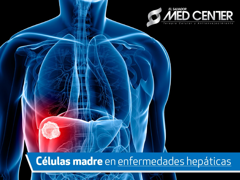 Medcenter: Células madre en enfermedades hepáticas